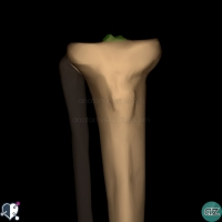 Proximal Tibia - Anterior - tubercles of intercondylar eminence
