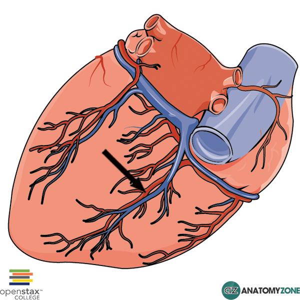 Posterior Interventricular (Descending) Artery